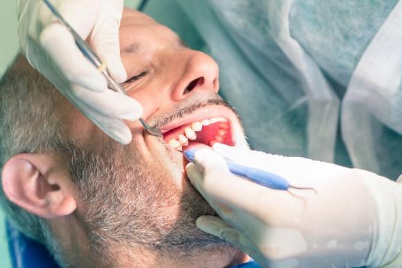 dévitaliser dent
